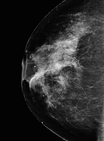Modified Mammography from NASA Goddard Space Flight Center